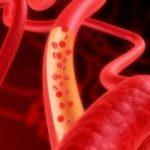 Атеросклероз: причины и симптомы